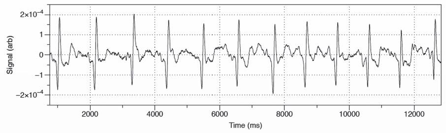 Fig. 4. Magnetocardiogram